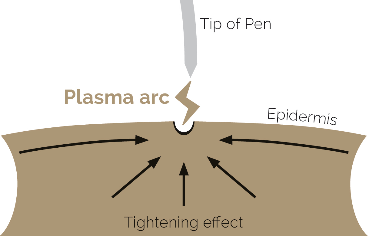 Plasma Skin Tightening UK - Pen Aesthetics & Accor Plasma Pen